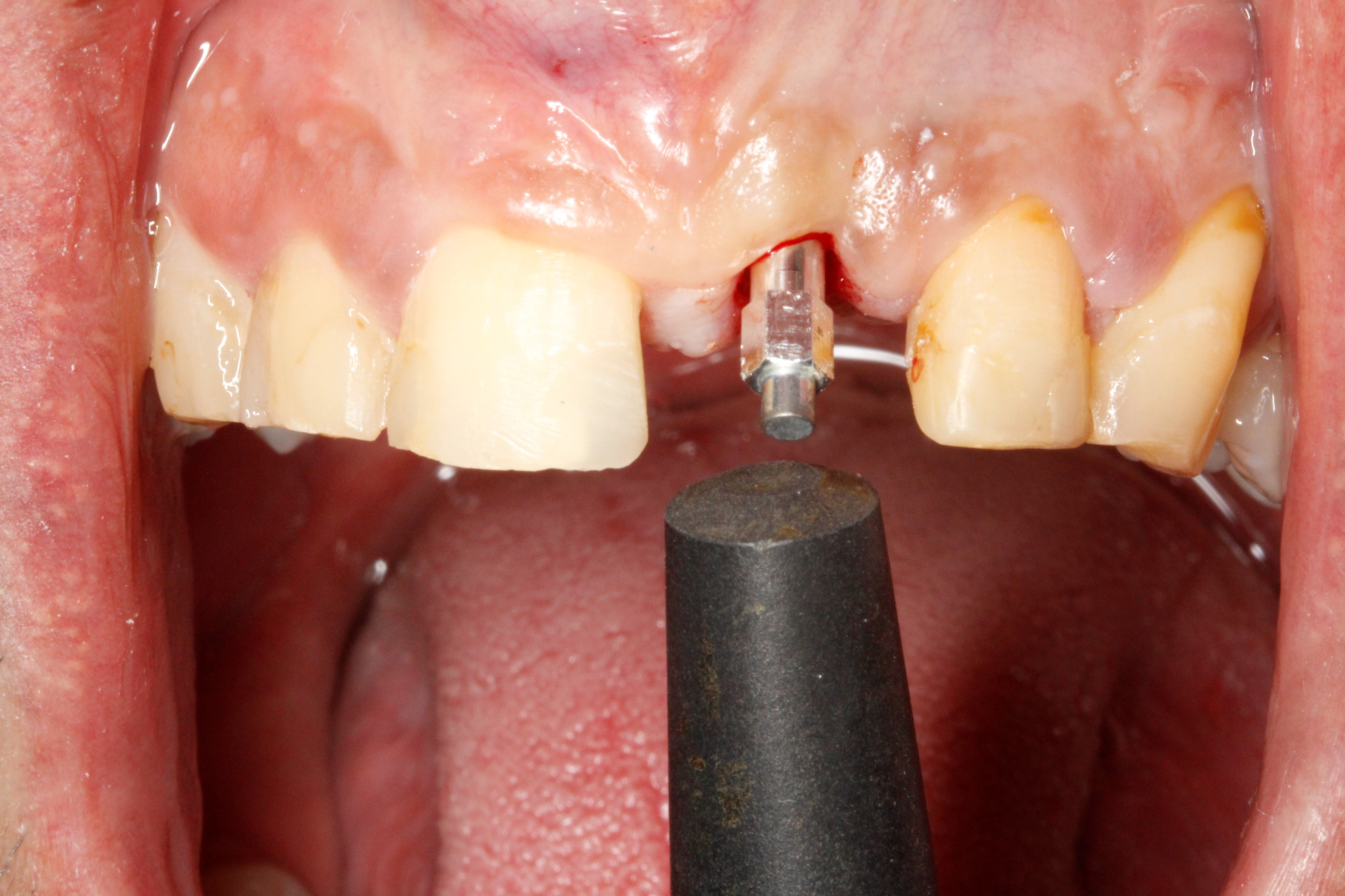 Figure 5 The position of the device must be kept orthogonal and 3 mm from the abutment to get significant results.